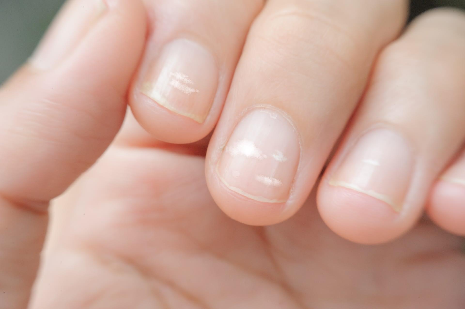 A closeup of visible white spots on fingernails