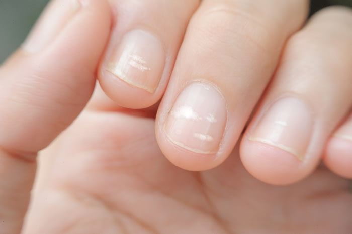 A closeup of visible white spots on fingernails