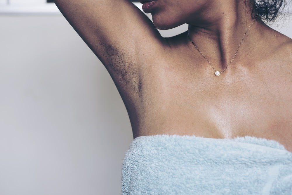 A woman raising her arm to reveal visible armpit stubble in need of unwanted hair removal