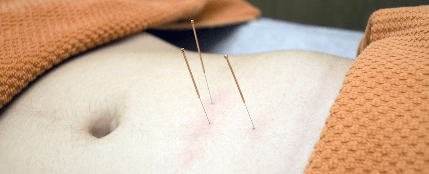 A person's belly with acupuncture needles inserted