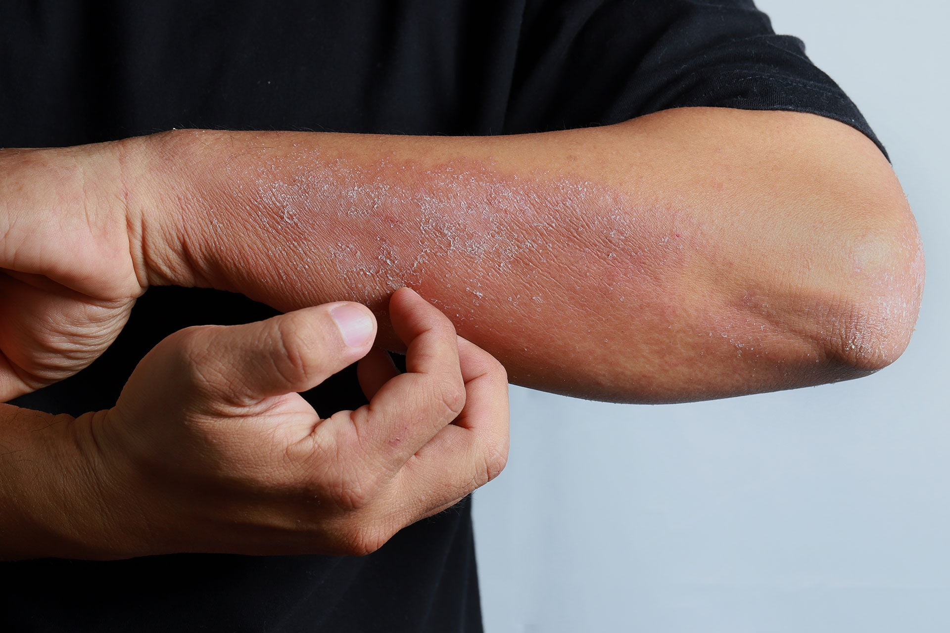 Man scratching skin looking for a homemade eczema remedy