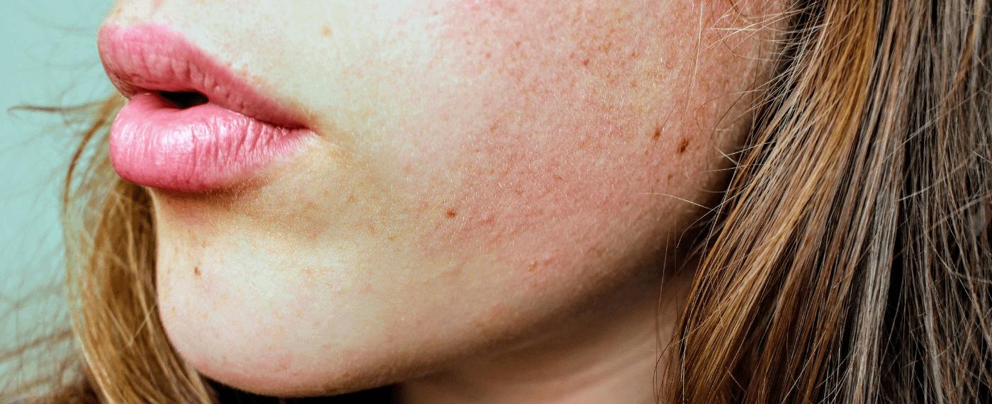A woman pondering if her irritated skin is a sign of an issue within