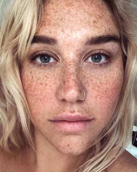 Recording artist Kesha shares her makeup-free freckles