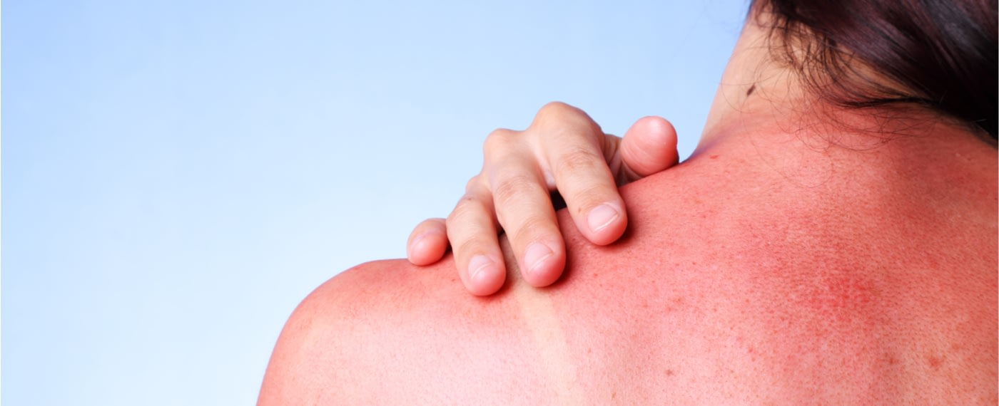 Woman with severe sunburn touching her back