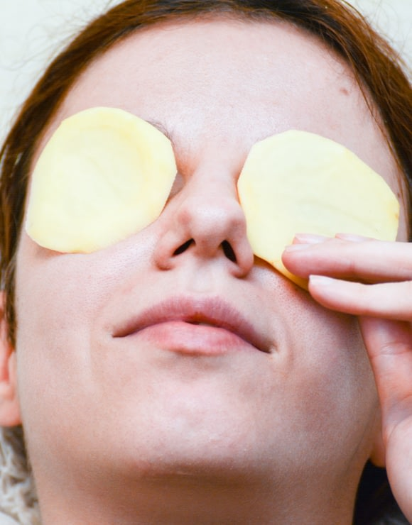 woman places potato slice son her eyes to eliminate baggy eyes